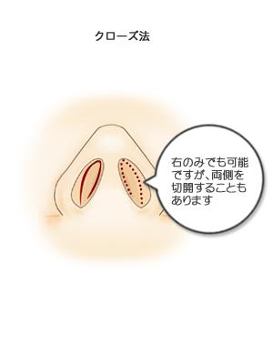 鼻骨骨切り幅寄せ術、切開部分
