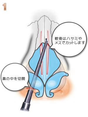 鼻骨骨切り幅寄せ術、軟骨の切除