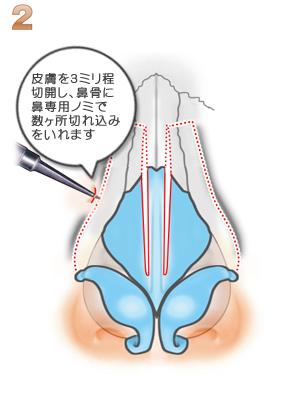 鼻骨骨切り幅寄せ術、骨切り