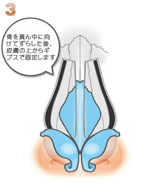 鼻骨骨切り幅寄せ術、術後ギブスで固定