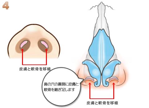 軟骨の移植