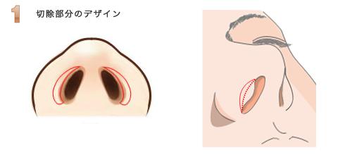 鼻孔縁挙上術:切除範囲のデザイン