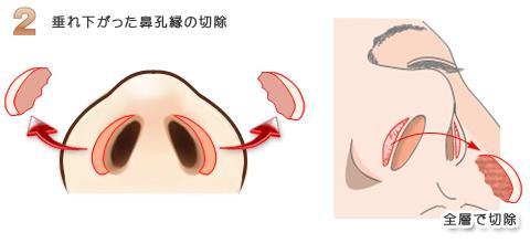 鼻孔縁挙上術:鼻先を斜め下に