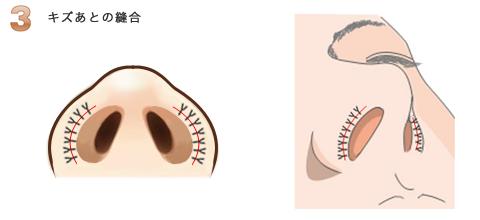 鼻孔縁挙上術:鼻柱を下に延ばす