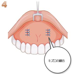 鼻翼基部プロテーゼ術:キズ口の縫合