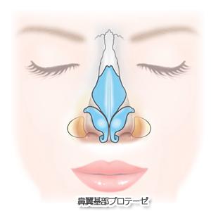鼻翼基部プロテーゼ術:鼻翼基部プロテーゼ