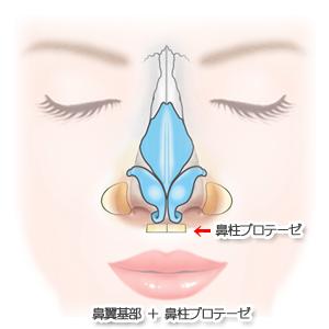 鼻翼基部プロテーゼ術:鼻翼基部+鼻柱プロテーゼ