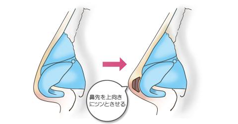 鼻尖形成:鼻先を上向きにツンと