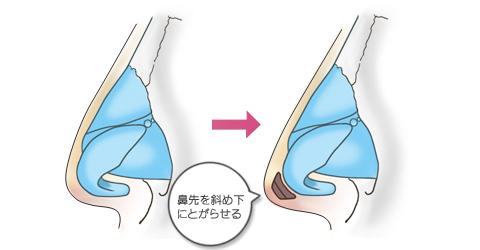 鼻尖形成:鼻先を斜め下に