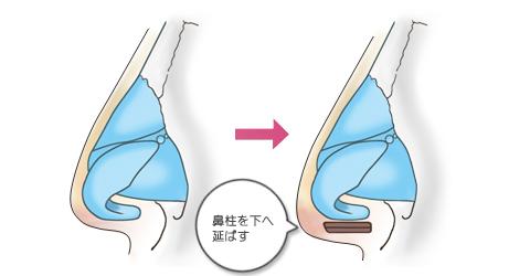 鼻尖形成:鼻柱を下に延ばす
