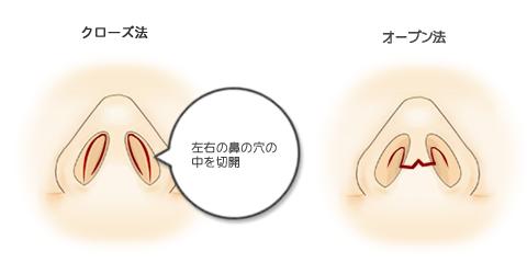 鼻尖形成:切開法