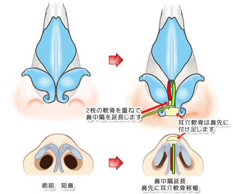 鼻中隔延長術イメージA