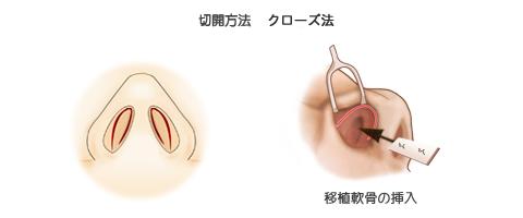 鼻中隔延長術:切開法クローズ法