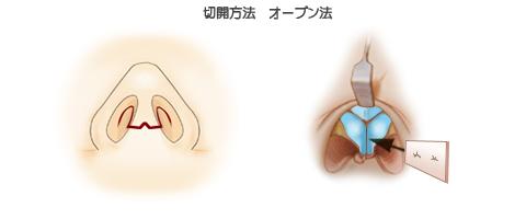 鼻中隔延長術:切開法オープン法