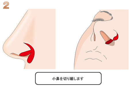 小鼻の切り離し