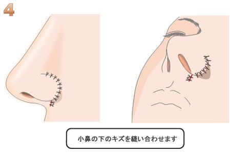 小鼻の下の傷を縫合