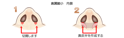 鼻翼縮小術内側、切除と真皮弁の作成