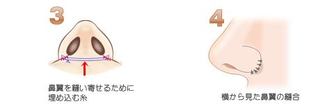 鼻翼縮小術外側