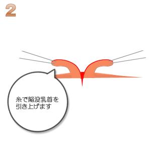 陥没乳頭:糸で陥没の引き上げ