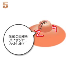 陥没乳頭:乳頭の両横をカット
