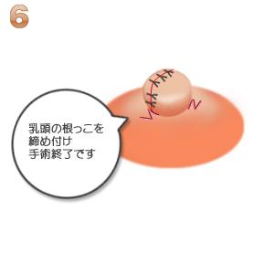陥没乳頭:乳頭を締め付け手術終了
