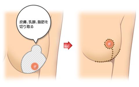 乳房吊り上げ術:軽度