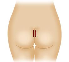 臀部プロテーゼ挿入:切開部分