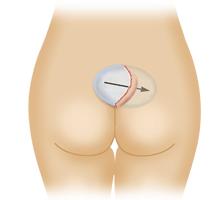 臀部プロテーゼ挿入