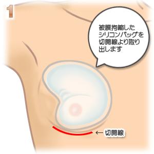 被膜(カプセル)拘縮、切開