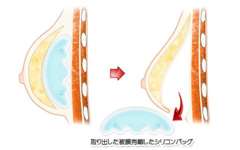 被膜(カプセル)拘縮、人工乳腺(じんこうにゅうせん)を抜去