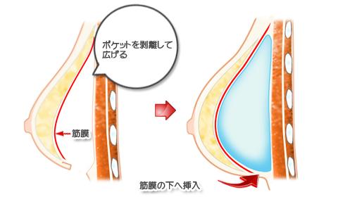 被膜(カプセル)拘縮除去後再挿入、筋膜下法
