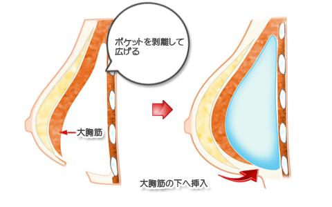 被膜(カプセル)拘縮除去後再挿入、大胸筋下法
