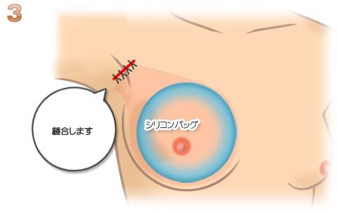 豊胸術:切開部分の縫合