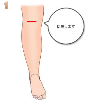 下腿部筋萎縮術(筋肉切除):切開