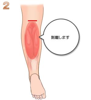 下腿部筋萎縮術(TCR):剥離