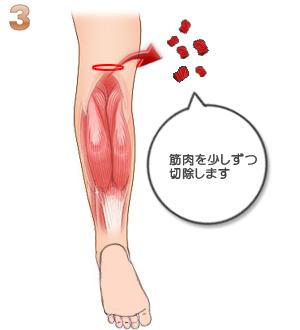 下腿部筋萎縮術(筋肉切除):筋肉取り出し