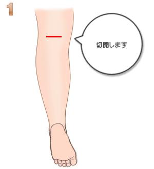 下腿部筋萎縮術(神経切除):切開