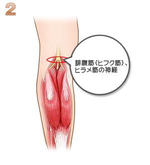 下腿部筋萎縮術(神経切除):神経を捜す
