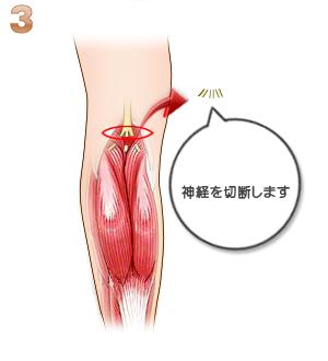 下腿部筋萎縮術(神経切除):神経切除
