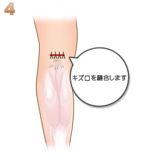 下腿部筋萎縮術(神経切除):縫合