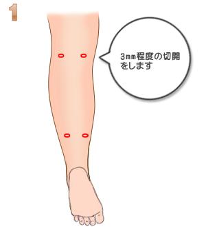 下腿部筋萎縮術(TCR):3mm程度切開
