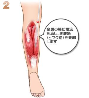 下腿部筋萎縮術(TCR):筋肉萎縮