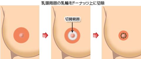 乳頭周囲の乳輪をドーナツ状に切除