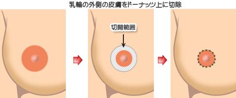 乳輪の外側の皮膚をドーナツ状に切除