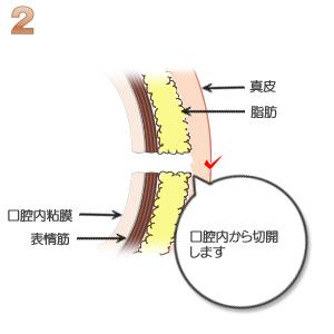 えくぼ形成:口腔内から切開