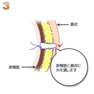 えくぼ形成:表皮と真皮に糸をかける