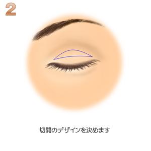 眼瞼下垂、切開デザイン