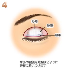 眼瞼下垂、挙筋腱膜確認