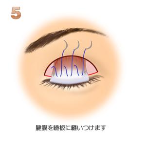 眼瞼下垂、腱膜を瞼板に縫いつける