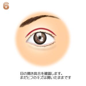 眼瞼下垂、開き具合の確認